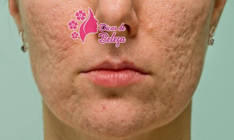 tratar cicatriz, rugas e manchas na pele