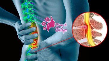 remedios para dor nas costas