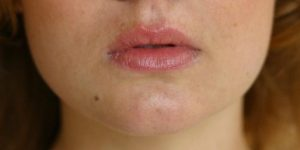 remover manchas do rosto