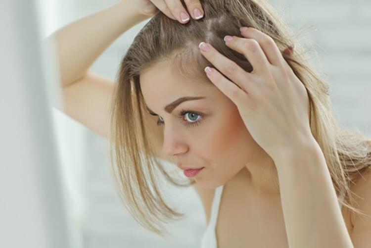 cabelo com caspas