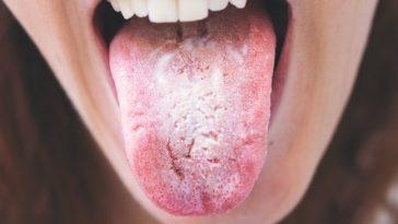 Cândida Albicans - Causas, Sintomas, Ervas Naturais e Suplementos