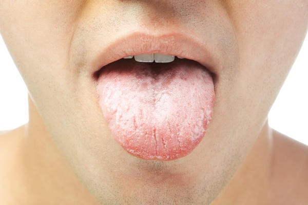 sintomas da anemia