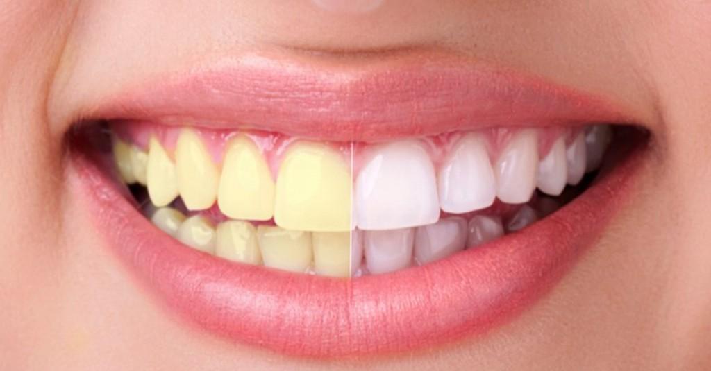 Dicas Naturais Para ter Dentes Brancos