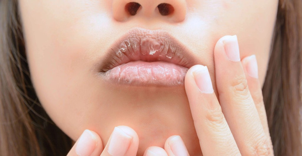 dicas faceis para clarear labios escuros