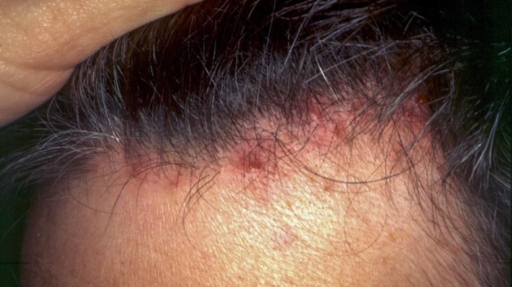 doencas do couro cabeludo