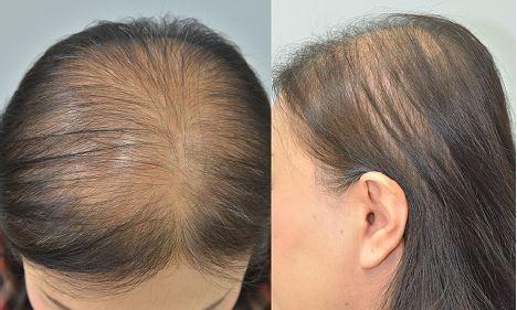 doença no couro cabeludo