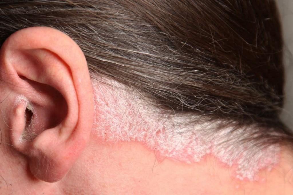doenças no couro cabeludo