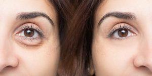 maneiras naturais para eliminar as olheiras