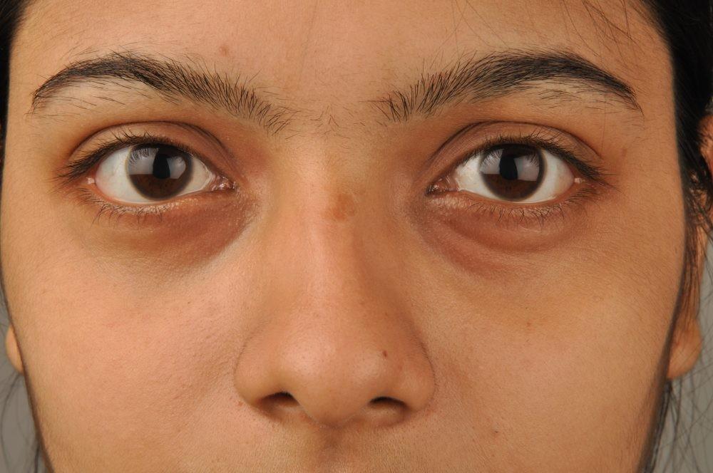 batatas ou tomates ajudam eliminar as olheiras