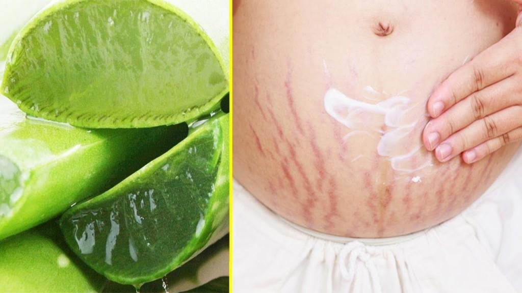 Receita gel de aloe vera para eliminar estrias