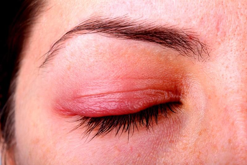 Rosácea ocular causas e tratamento