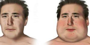 Síndrome de Cushing - Causas e Sintomas
