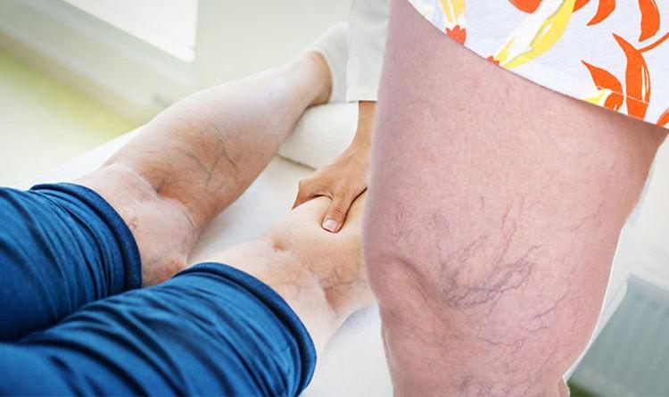 tratamentos cirúrgicos para varizes