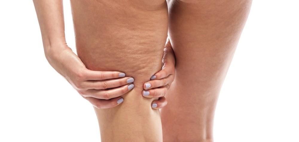 remover a celulite das pernas naturalmente