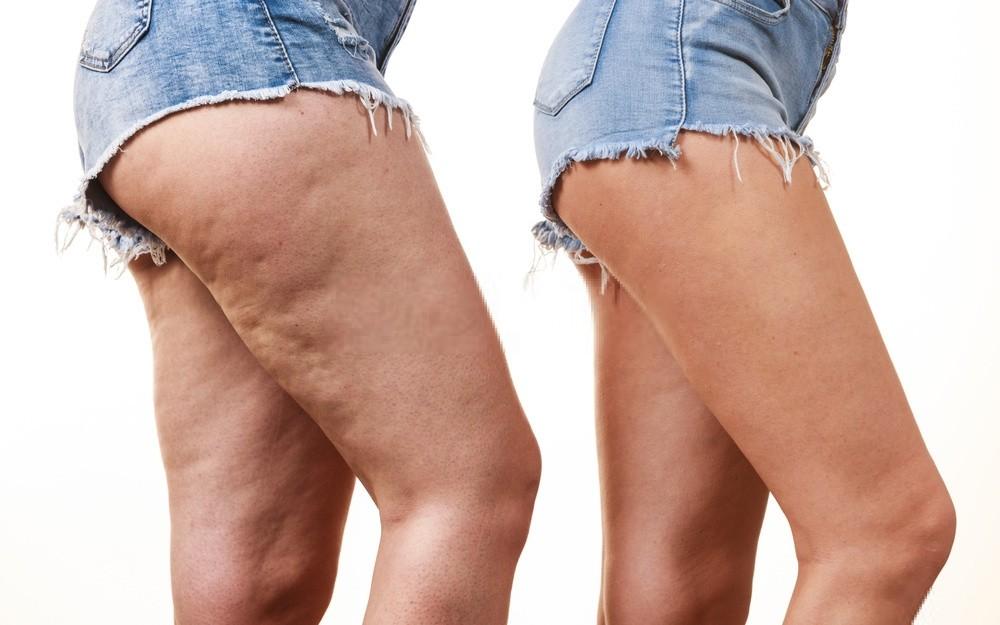 como remover a celulite das pernas naturalmente?