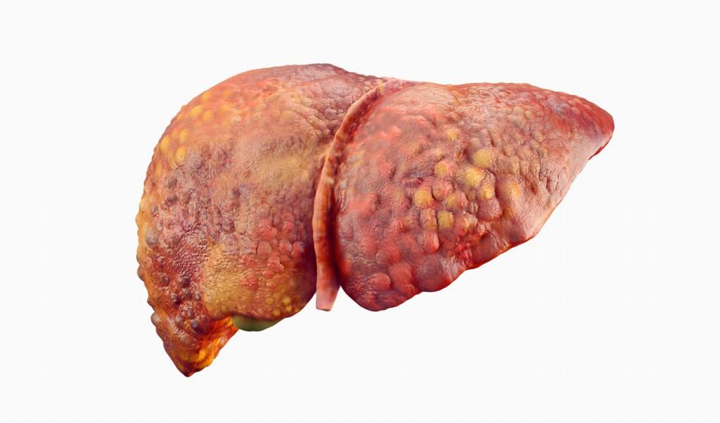 porque fígado gordo causa câncer?