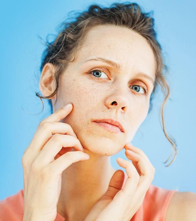 o que causa infecção facial por fungos?