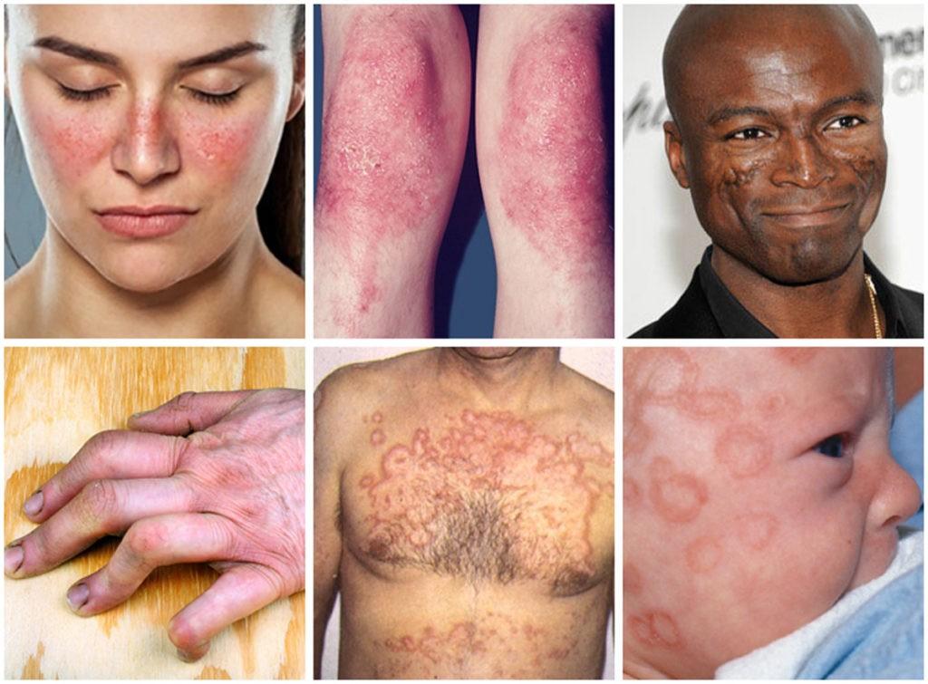 lupus causas
