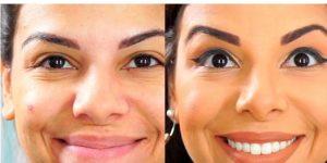 marcas de expressão facial