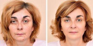 dicas para manter a pele limpa e saudável naturalmente
