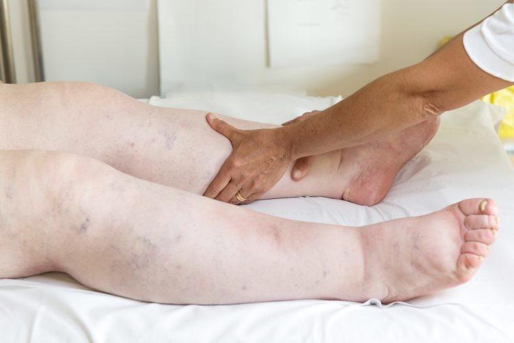 remedios caseiros para tratar pernas inchadas