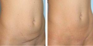 remedios caseiros para remover cicatrizes da pele