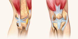 fortalecer os tendões e ligamentos