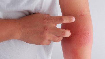 tratamento de eczema