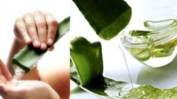 aloe vera para combater acne, eczema e alergias