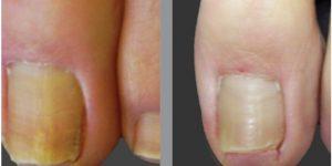 remover os fungos das unhas com vinagre