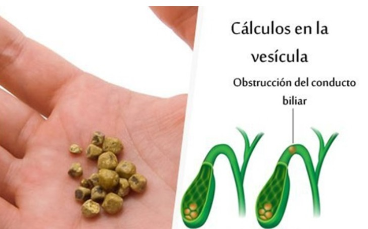 remédios naturais para eliminar cálculos biliares