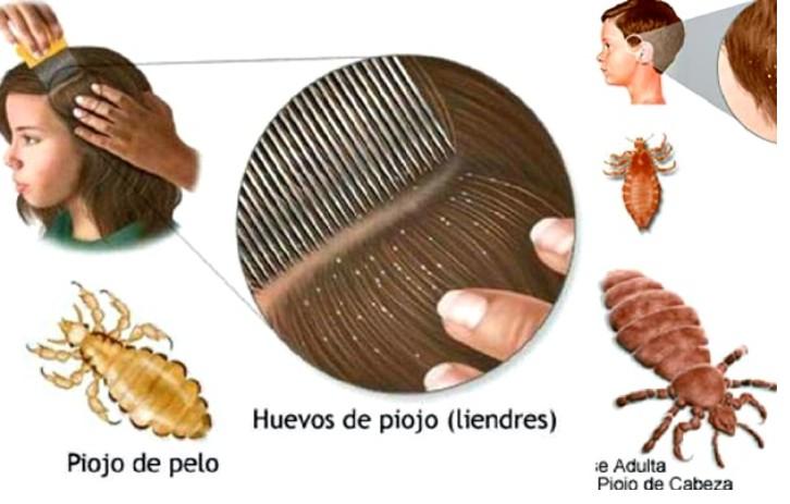 remédio natural para eliminar piolhos e fungos