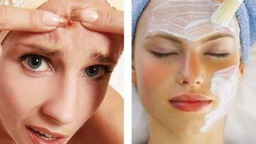 As 2 Receitas de Máscaras Caseiras Contra Acne