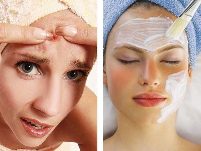 mascara caseira contra acne