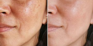como eliminar manchas na pele