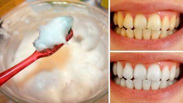 bicarbonato de sodio para clareamento dos dentes