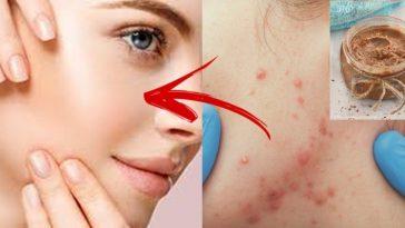 remedios naturais para o tratamento de acne
