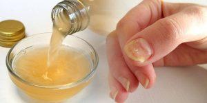 remedios caseiros para tratar fungos nas unhas