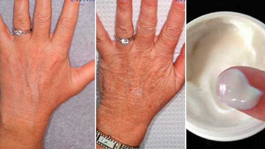 oleo de coco para rejuvenescer e hidratar a pele