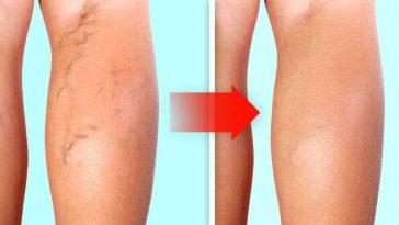 exercicios para eliminar as varizes nas pernas