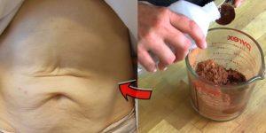 formas para eliminar flacidez da pele