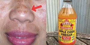 clarear qualquer mancha na pele