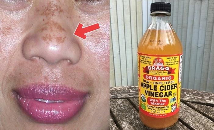 Eliminar todas as manchas da pele