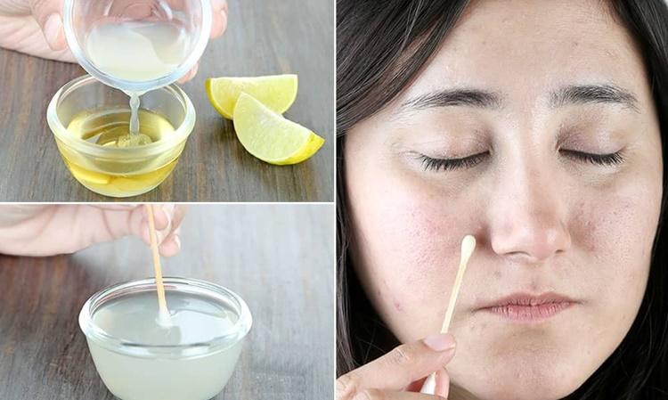 eliminar manchas do rosto em casa