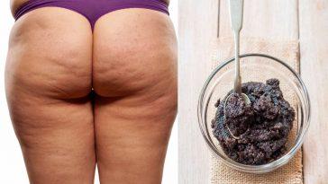 Receita Caseira Para Eliminar Celulite em Pouco Tempo