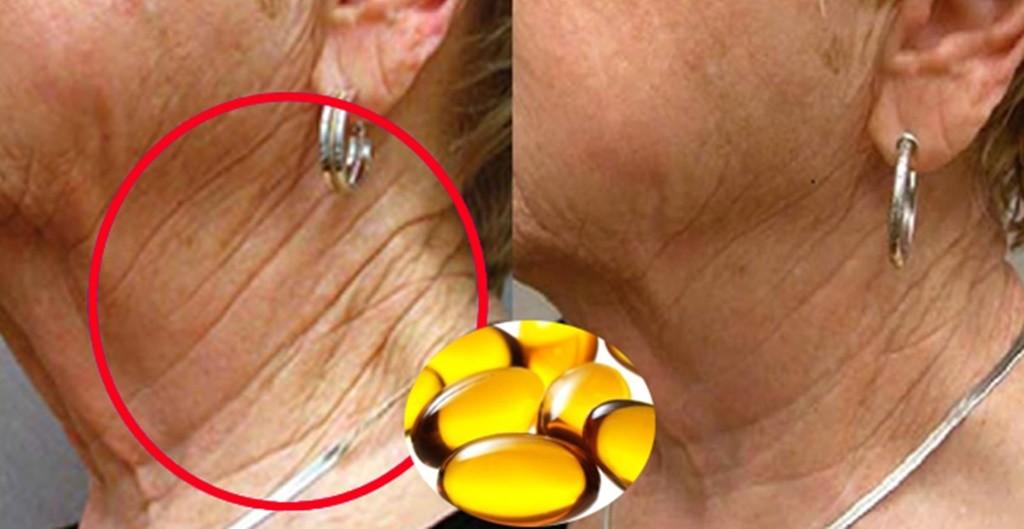 vitamina E para eliminar as rugas e a flacidez da pele