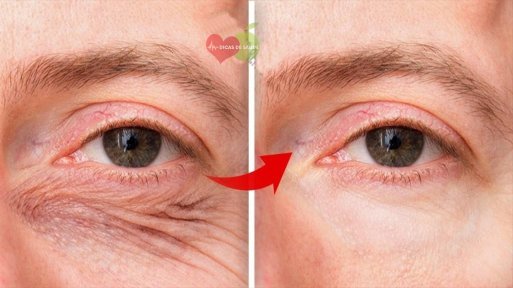óleo de coco para eliminar as rugas dos olhos