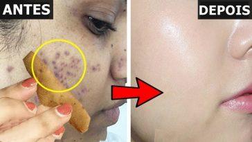 receitas para remover manchas faciais