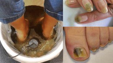 receita caseira acabar com os fungos nos pes