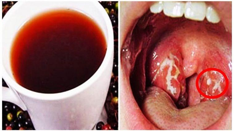 Como se Livra da Infecção da Garganta Naturalmente com a Beterraba em Apenas 4 Horas